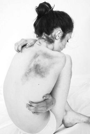 He Was A Six Foot, Six Year Old..-Rachel Finch/Bruised But NotBroken